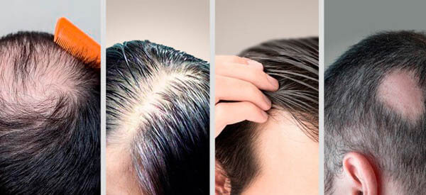 how to stop my hair from falling