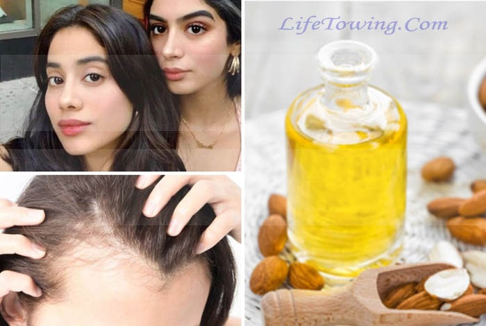 How to Regrow Hair In Your Frontal Hairline Naturally