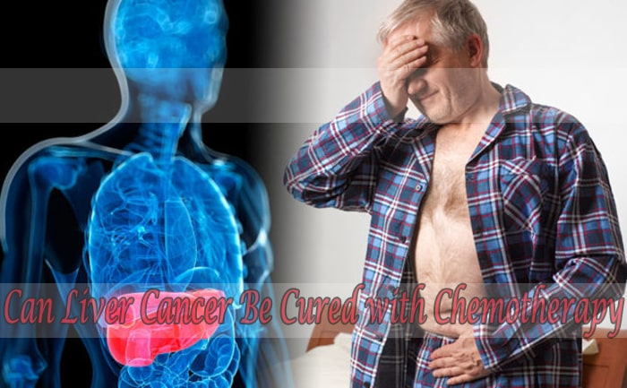 Can Liver Cancer Be Cured with Chemotherapy