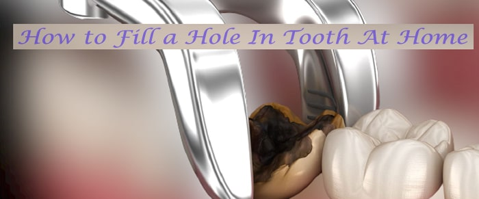 Fill a Hole In Tooth At Home
